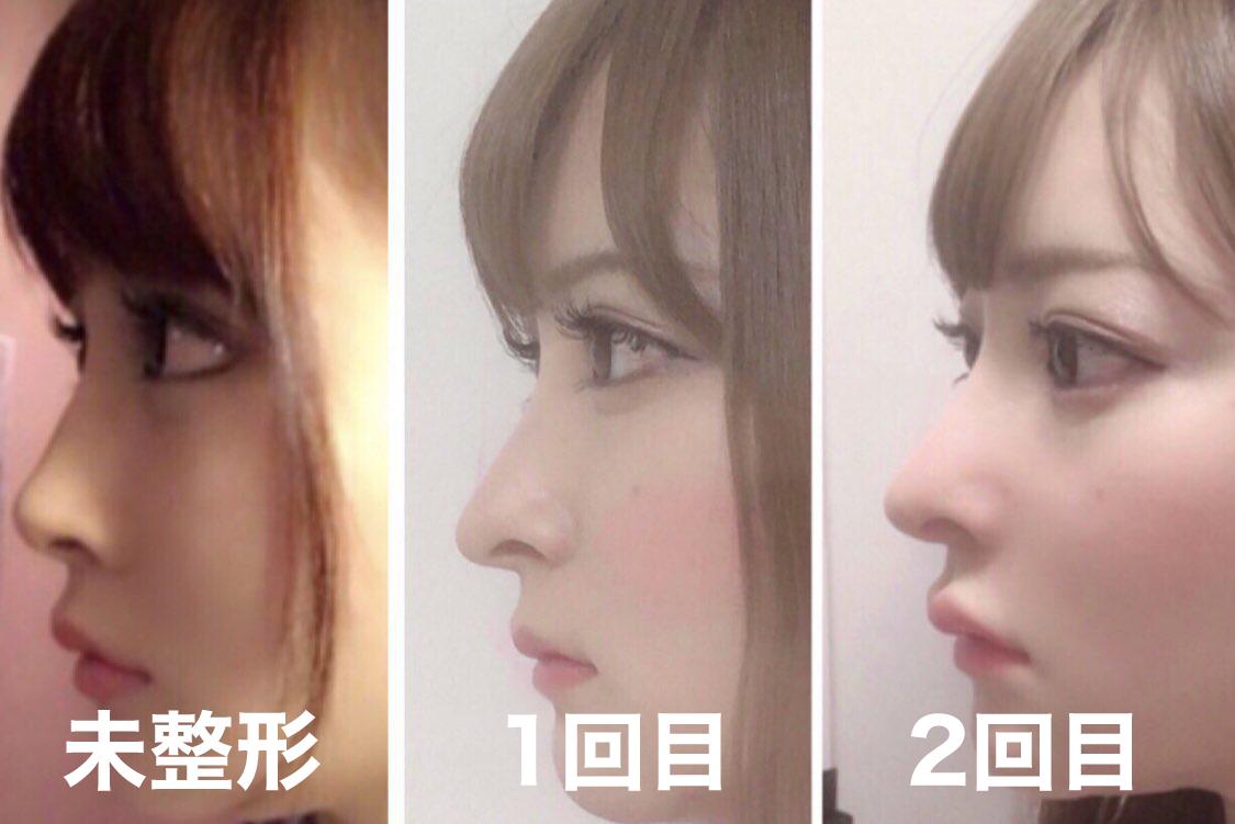 黒崎みさ 整形 元の顔 鼻