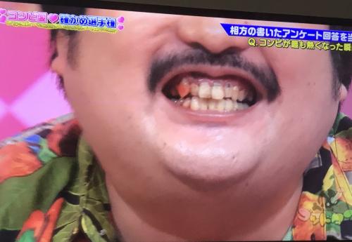 鈴木もぐら 歯茎から血